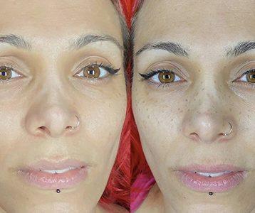 SabbyBeauty: Freckle